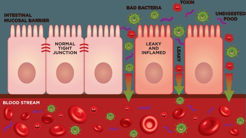 Prepustno črevesje diagram-min