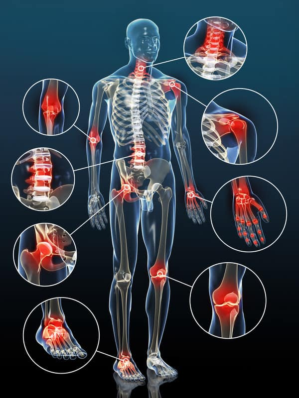 Artritis prizadene vse sklepe