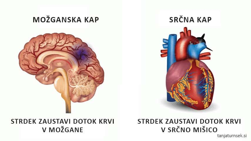 Možganska-ali-srčna-kap-10-dejavnikov-tveganja-min